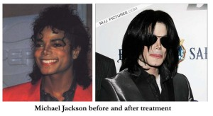 Jacko before after